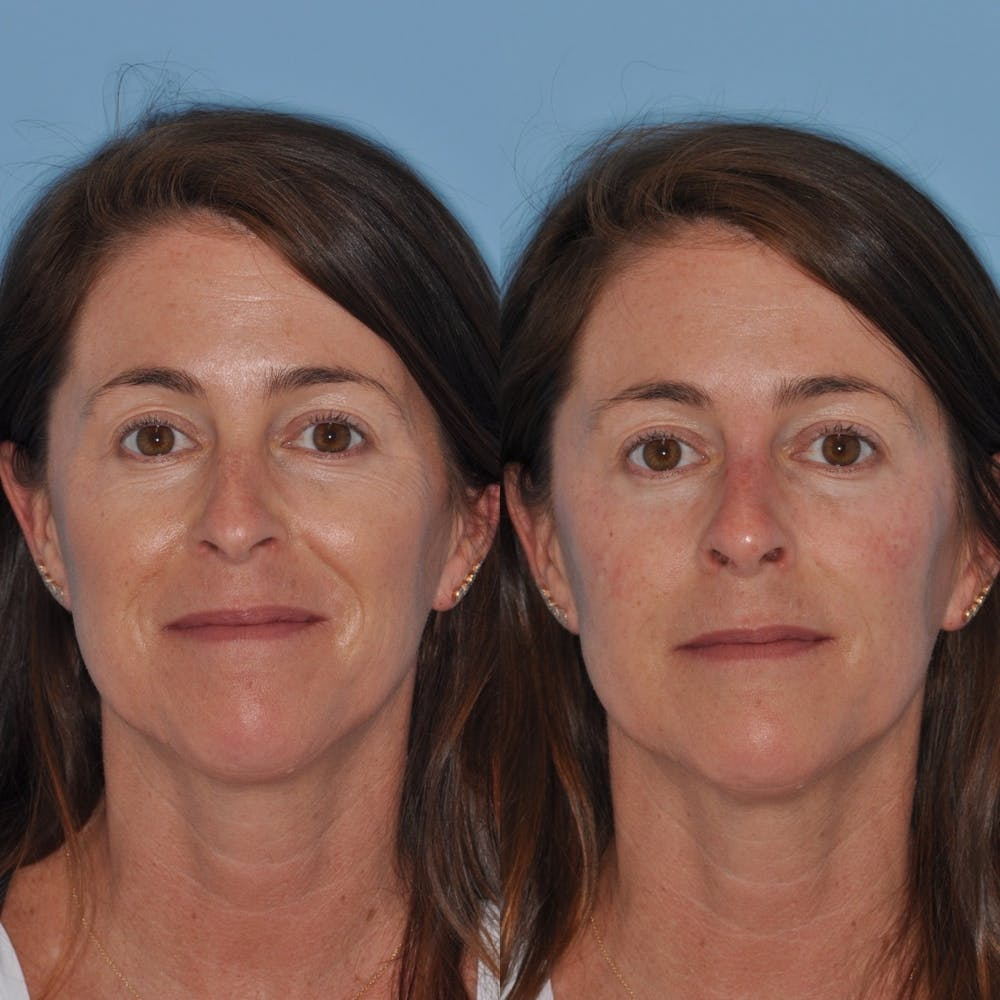 Non-Surgical Rhinoplasty Gallery - Patient 31709163 - Image 8