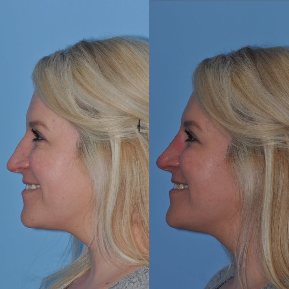 Non-Surgical Rhinoplasty Gallery - Patient 31709165 - Image 3