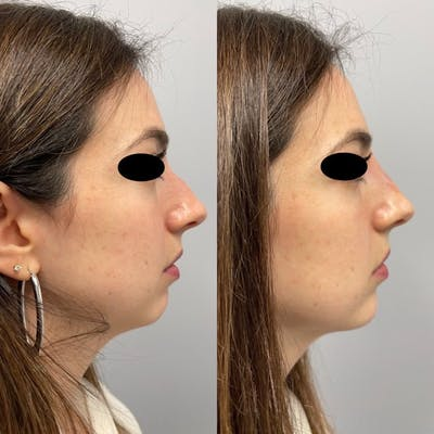 Non-Surgical Rhinoplasty Gallery - Patient 31709164 - Image 2