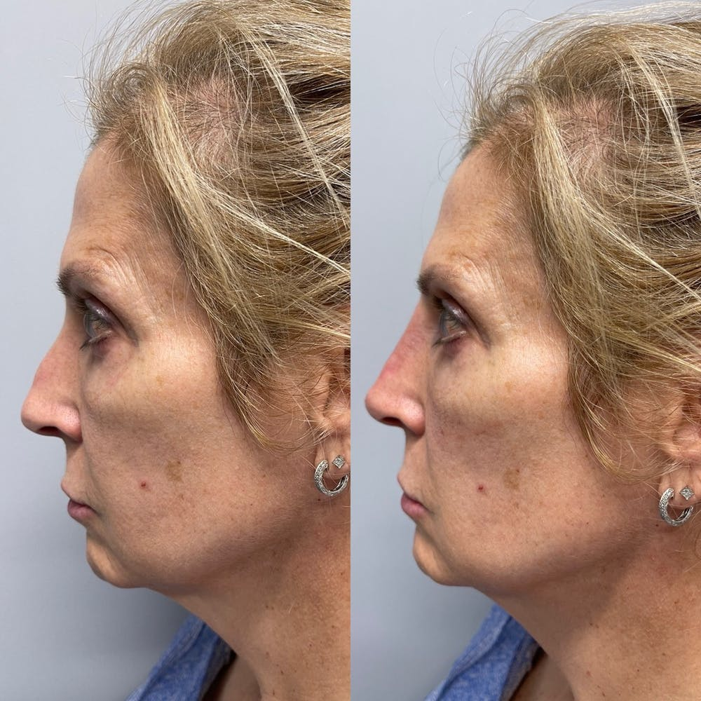 Non-Surgical Rhinoplasty Gallery - Patient 31709166 - Image 2