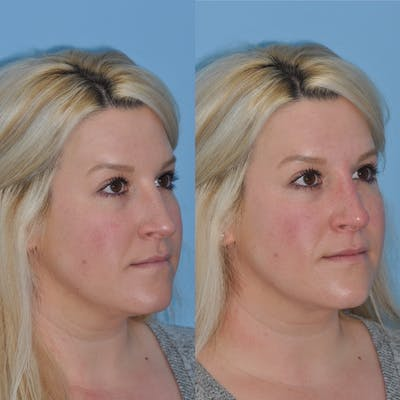 Non-Surgical Rhinoplasty Gallery - Patient 31709165 - Image 4