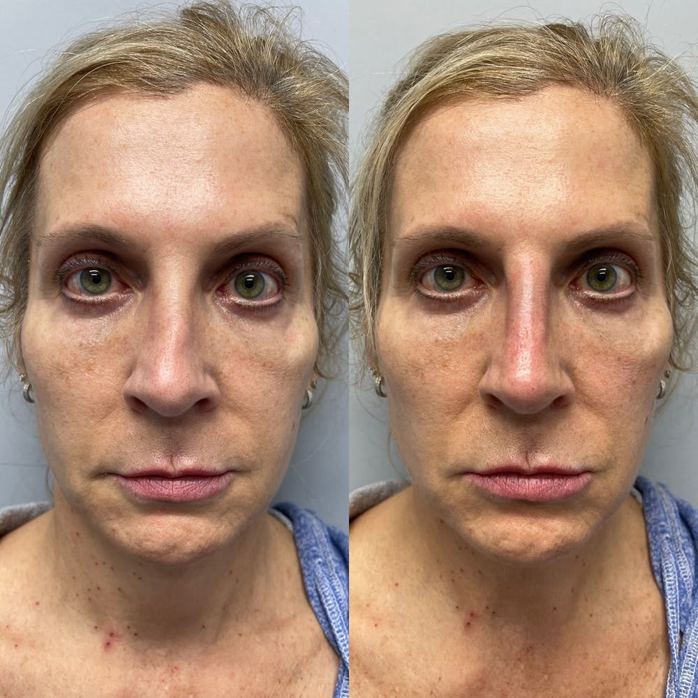 Non-Surgical Rhinoplasty Gallery - Patient 31709166 - Image 3