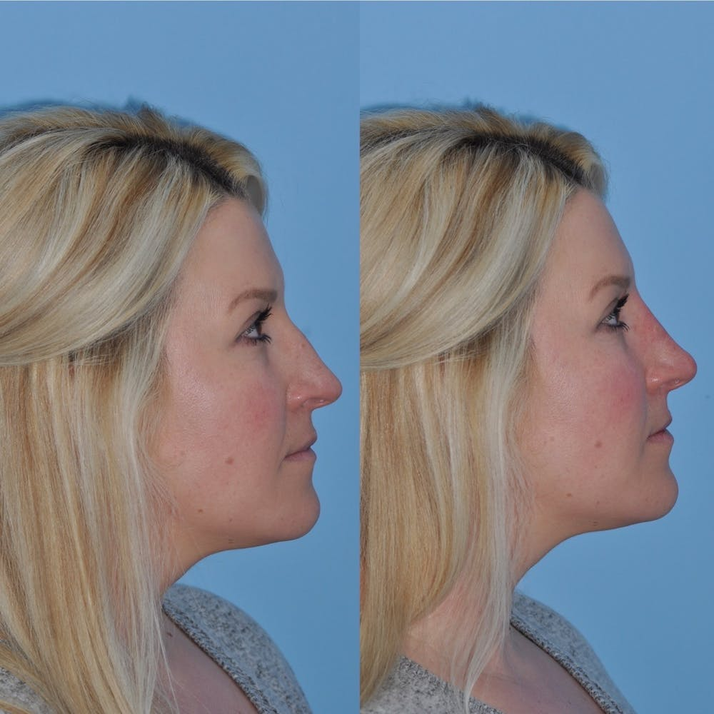 Non-Surgical Rhinoplasty Gallery - Patient 31709165 - Image 5