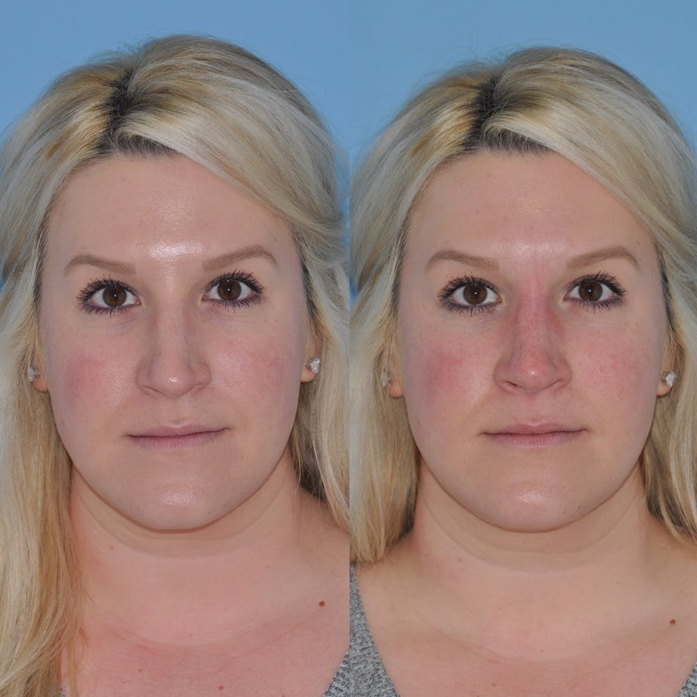 Non-Surgical Rhinoplasty Gallery - Patient 31709165 - Image 6