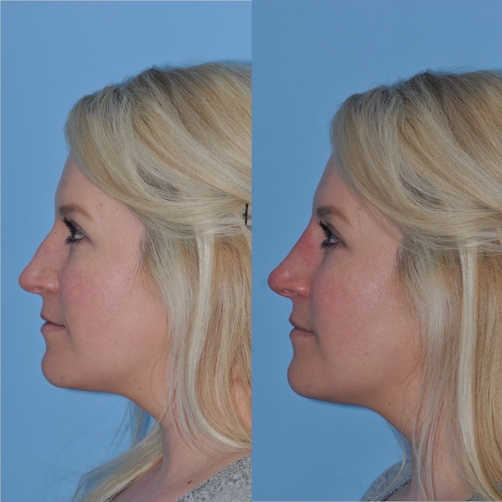 Non-Surgical Rhinoplasty Gallery - Patient 31709165 - Image 7
