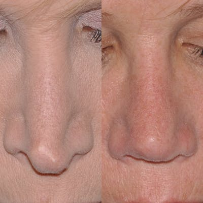 Revision Rhinoplasty Gallery - Patient 30624186 - Image 4