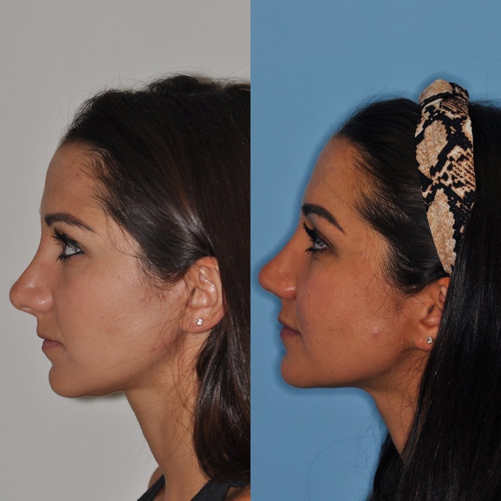 Revision Rhinoplasty Gallery - Patient 31709170 - Image 1