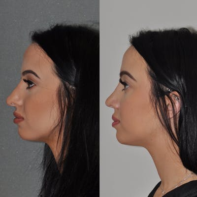 Revision Rhinoplasty Gallery - Patient 31709171 - Image 1