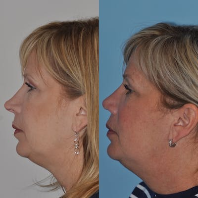 Revision Rhinoplasty Gallery - Patient 30624186 - Image 1