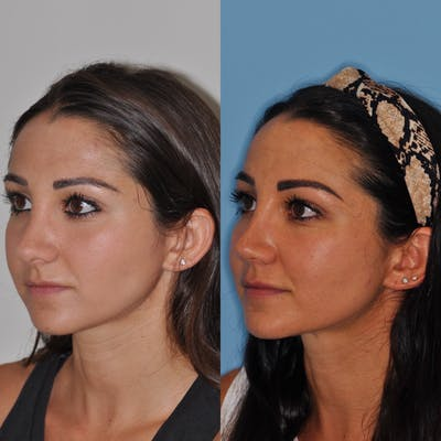 Revision Rhinoplasty Gallery - Patient 31709170 - Image 2