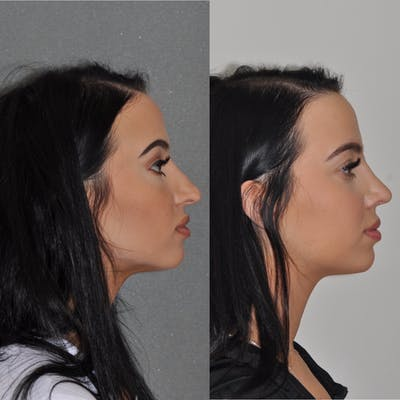 Revision Rhinoplasty Gallery - Patient 31709171 - Image 2