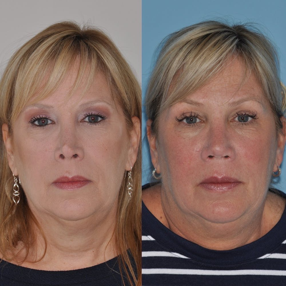 Revision Rhinoplasty Gallery - Patient 30624186 - Image 3