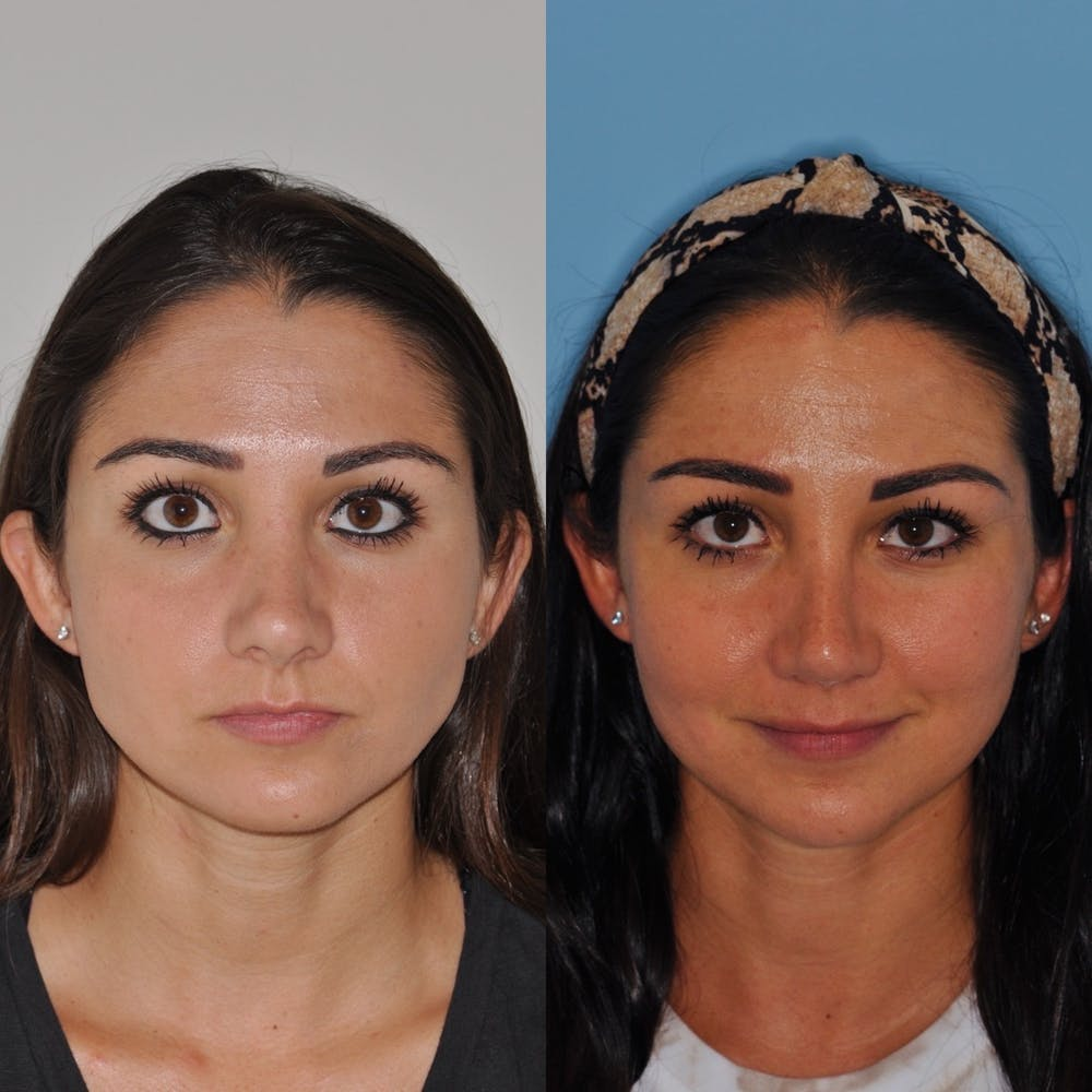 Revision Rhinoplasty Gallery - Patient 31709170 - Image 3