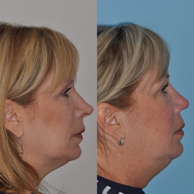 Revision Rhinoplasty Gallery - Patient 30624186 - Image 2