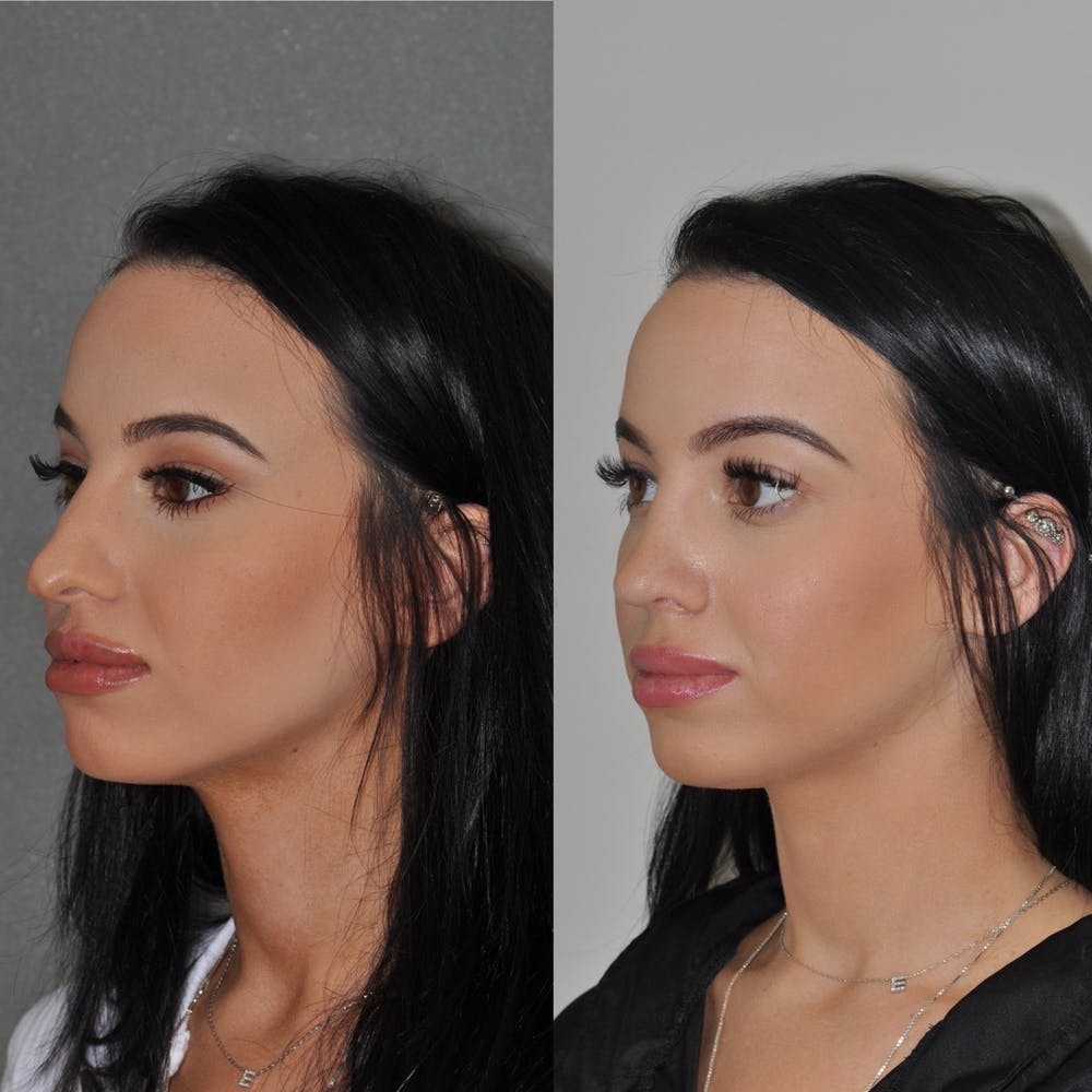 Revision Rhinoplasty Gallery - Patient 31709171 - Image 3