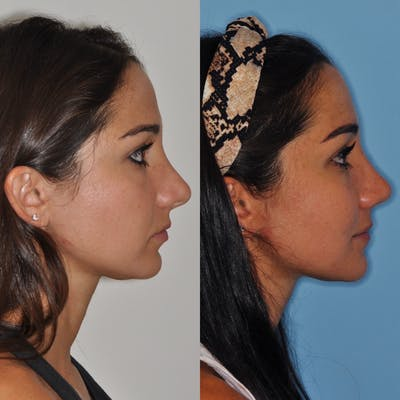 Revision Rhinoplasty Gallery - Patient 31709170 - Image 4