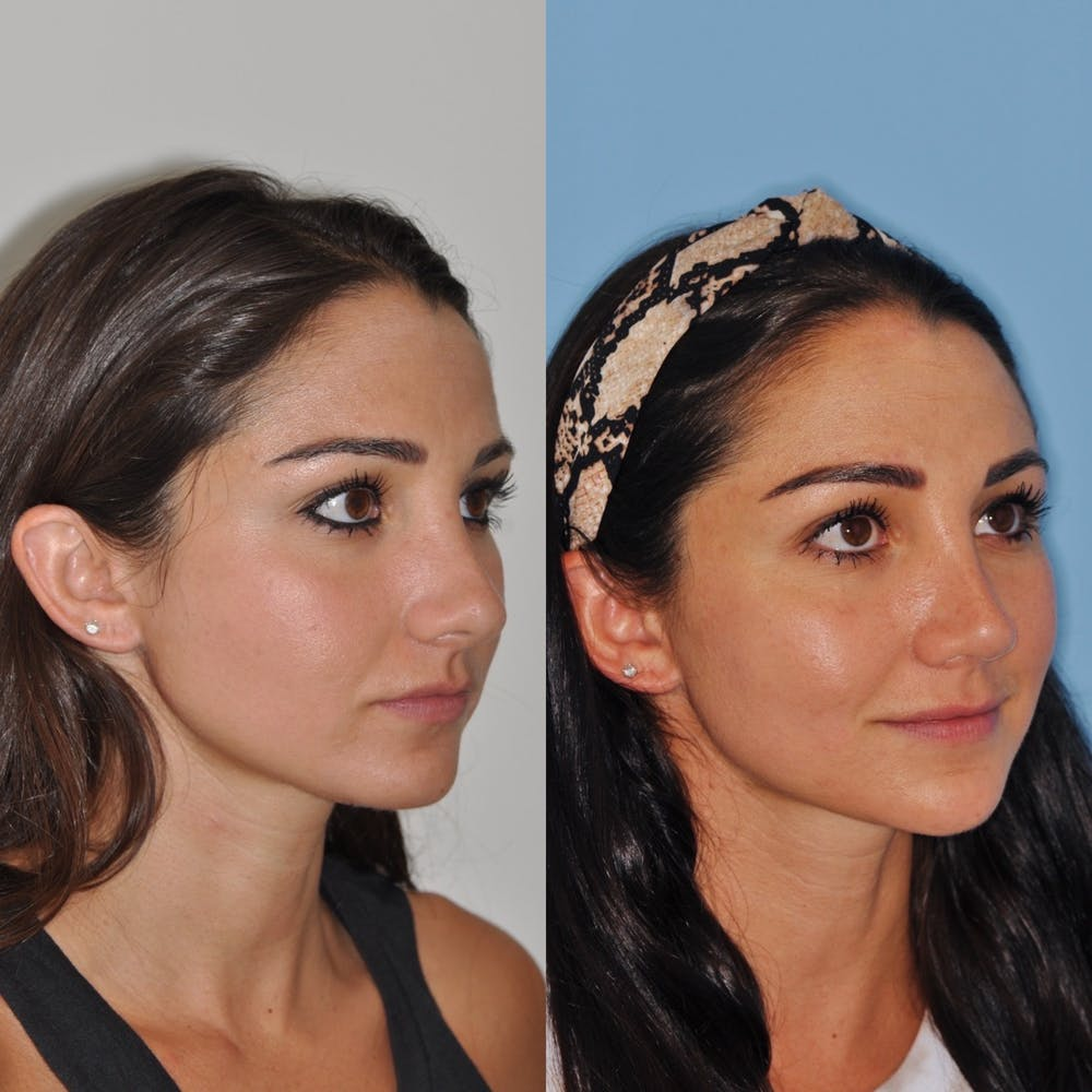 Revision Rhinoplasty Gallery - Patient 31709170 - Image 5