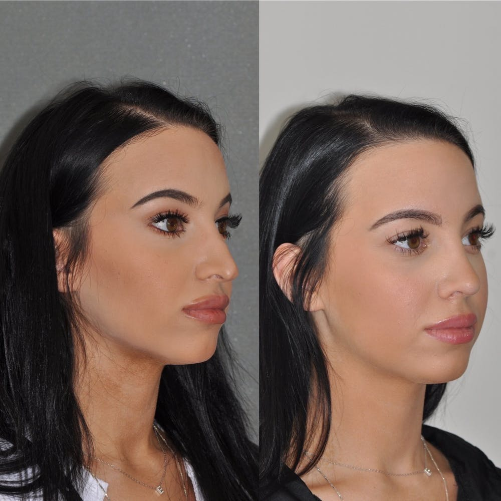 Revision Rhinoplasty Gallery - Patient 31709171 - Image 4