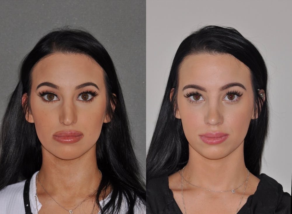 Revision Rhinoplasty Gallery - Patient 31709171 - Image 5