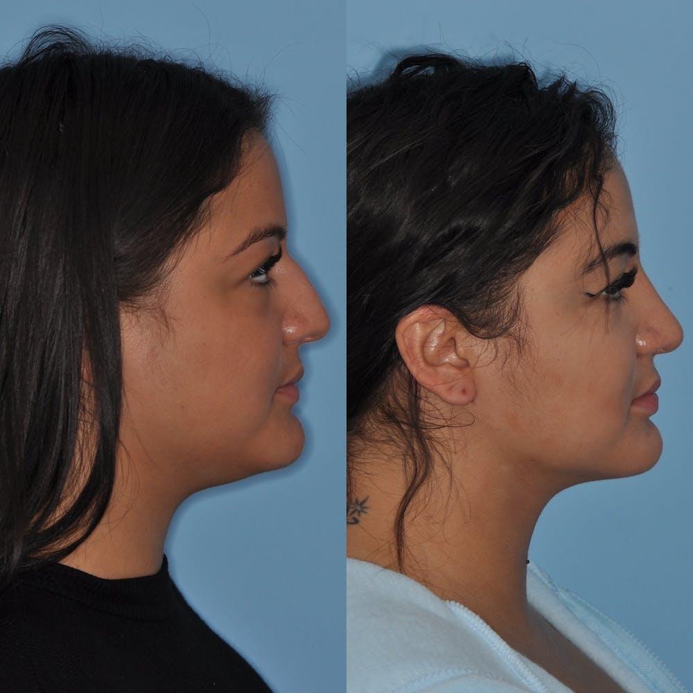 Neck Liposuction Gallery - Patient 31709174 - Image 1