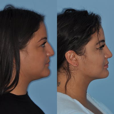Neck Liposuction Gallery - Patient 31709174 - Image 1
