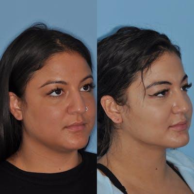 Neck Liposuction Gallery - Patient 31709174 - Image 2