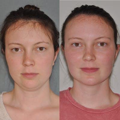 Neck Liposuction Gallery - Patient 31709172 - Image 4