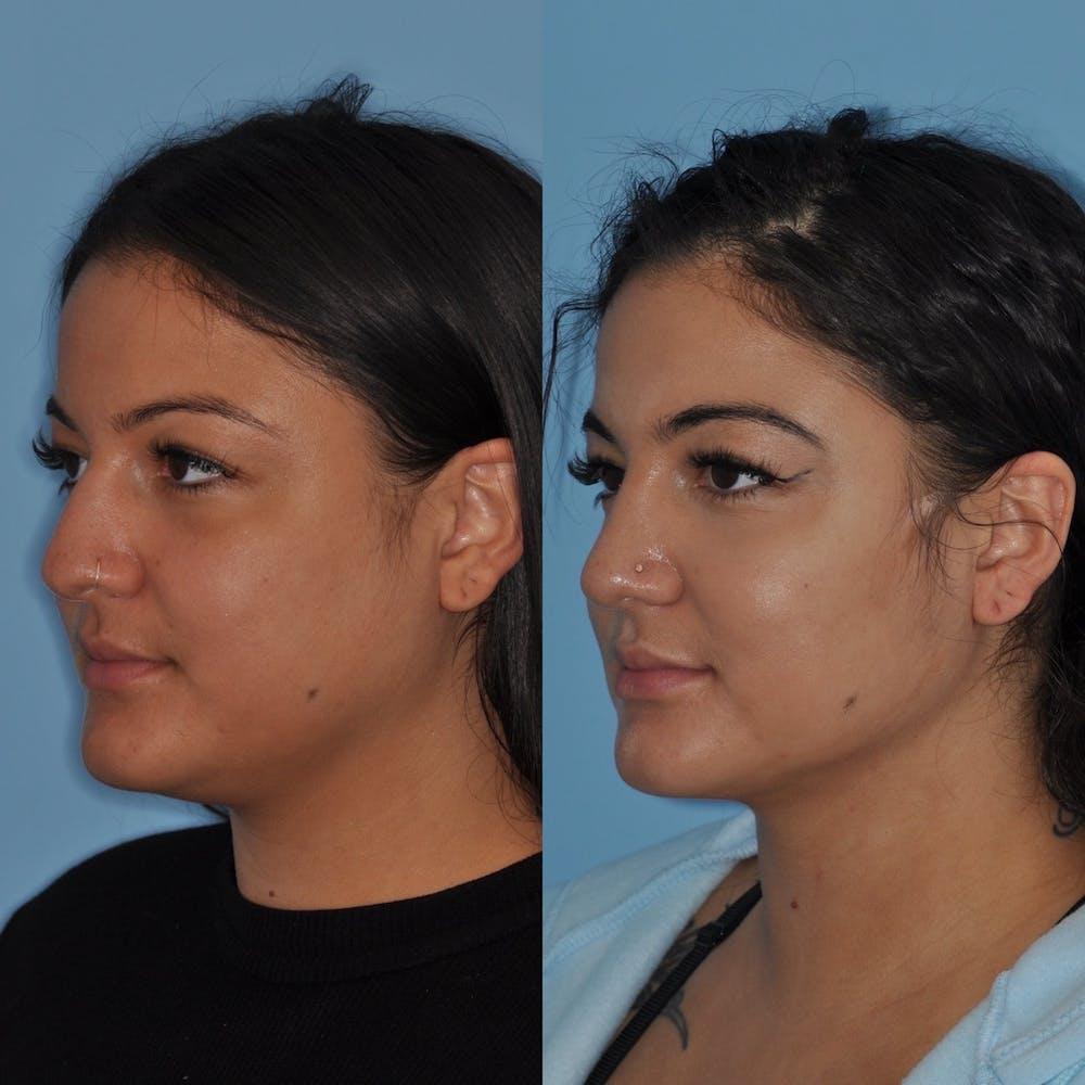 Neck Liposuction Gallery - Patient 31709174 - Image 3