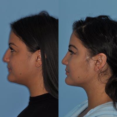Neck Liposuction Gallery - Patient 31709174 - Image 4