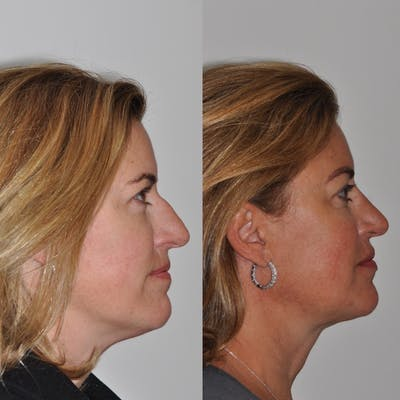 Neck Lift Gallery - Patient 30624147 - Image 1