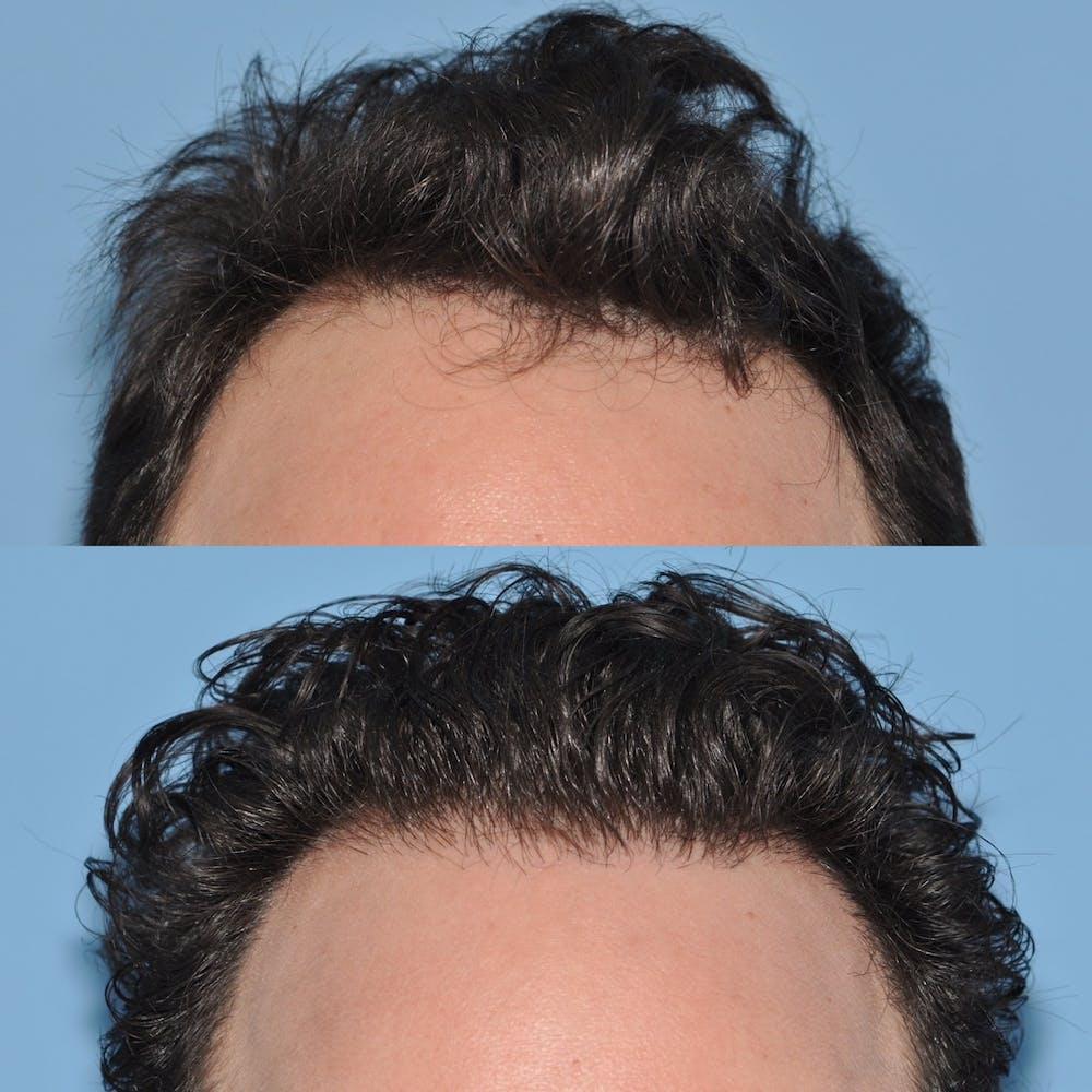Hair Transplantation Gallery - Patient 31709195 - Image 1