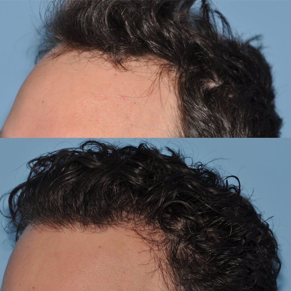 Hair Transplantation Gallery - Patient 31709195 - Image 2
