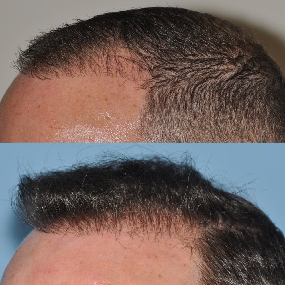 Hair Transplantation Gallery - Patient 31709194 - Image 3