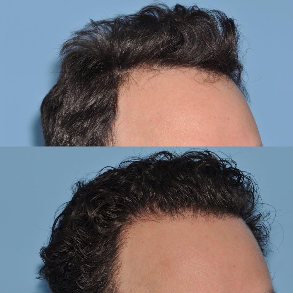 Hair Transplantation Gallery - Patient 31709195 - Image 3