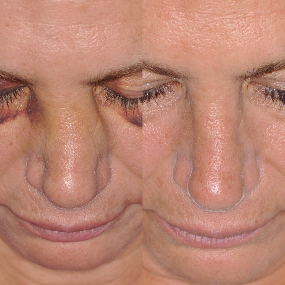 Facial Reconstruction Gallery - Patient 31709203 - Image 1