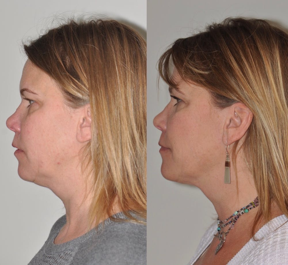 FaceTite & ThermiTight Gallery - Patient 31709213 - Image 3