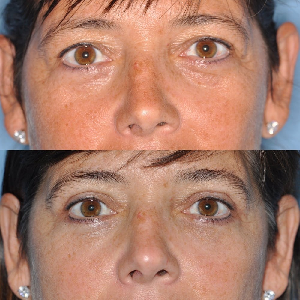 Blepharoplasty Gallery - Patient 31709252 - Image 1