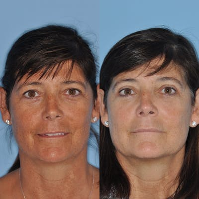 Blepharoplasty Gallery - Patient 31709252 - Image 2