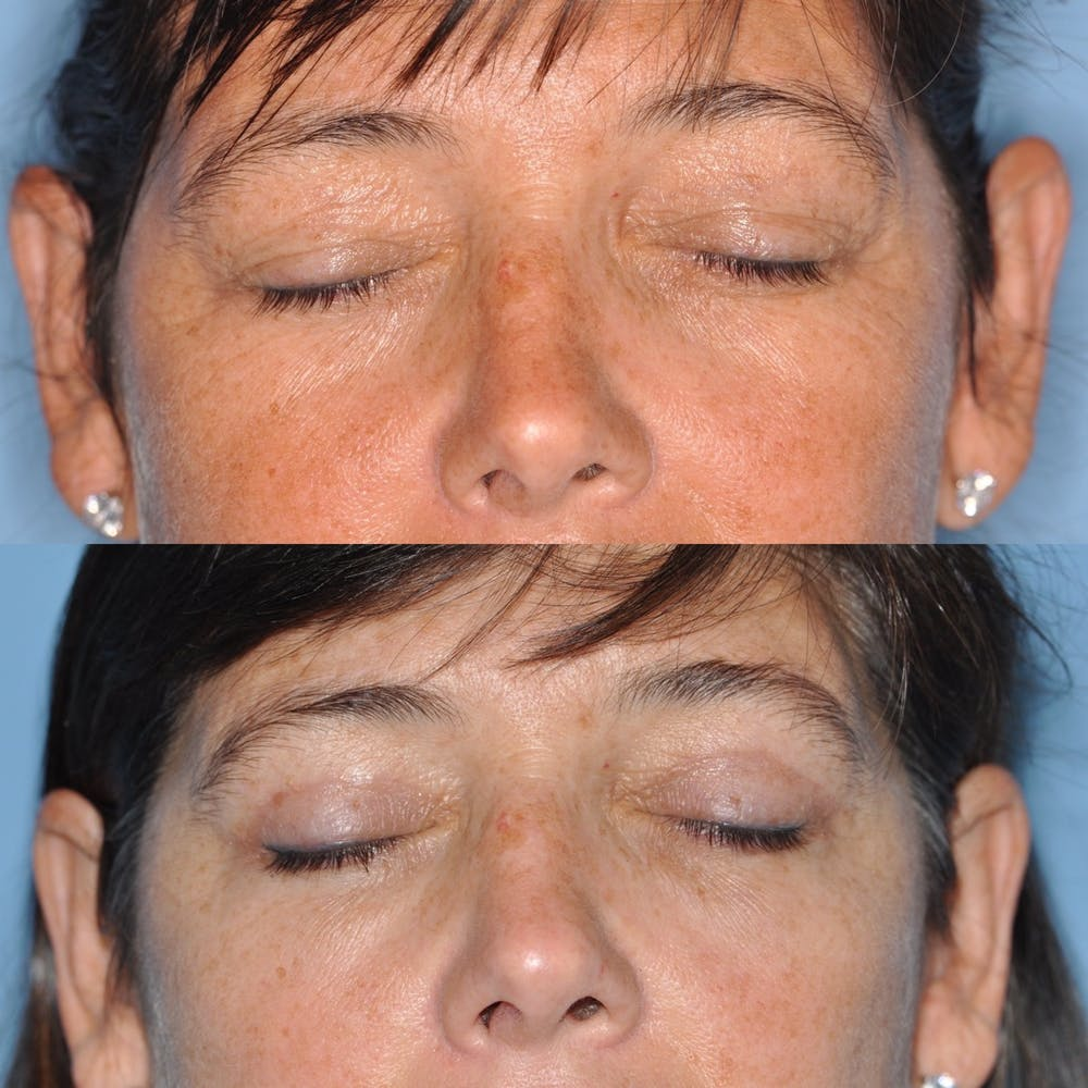 Blepharoplasty Gallery - Patient 31709252 - Image 3