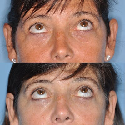 Blepharoplasty Gallery - Patient 31709252 - Image 4