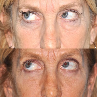 Blepharoplasty Gallery - Patient 31709255 - Image 2