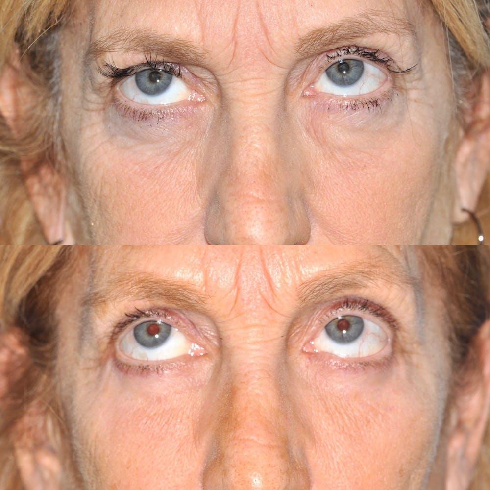 Blepharoplasty Gallery - Patient 31709255 - Image 3