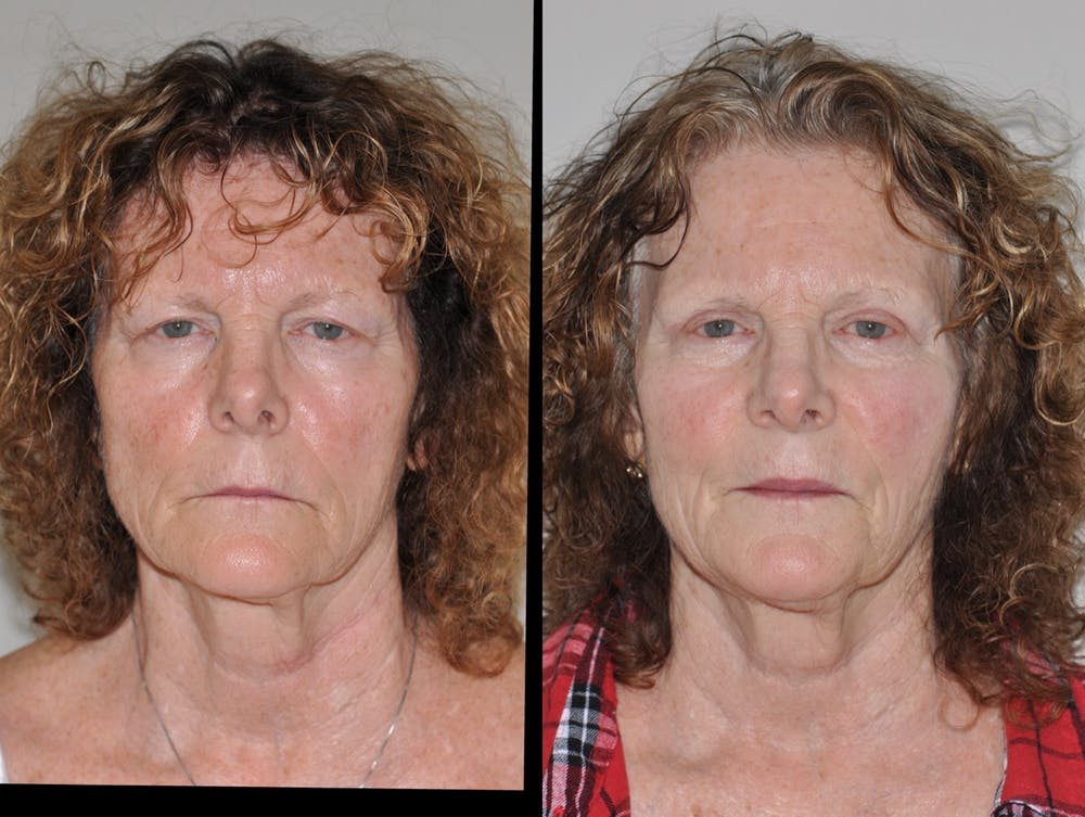 Blepharoplasty Gallery - Patient 31709260 - Image 1