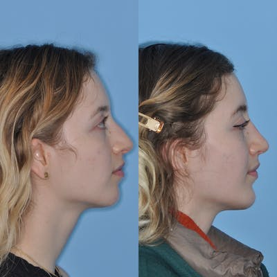 Chin Implants Gallery - Patient 31709269 - Image 1