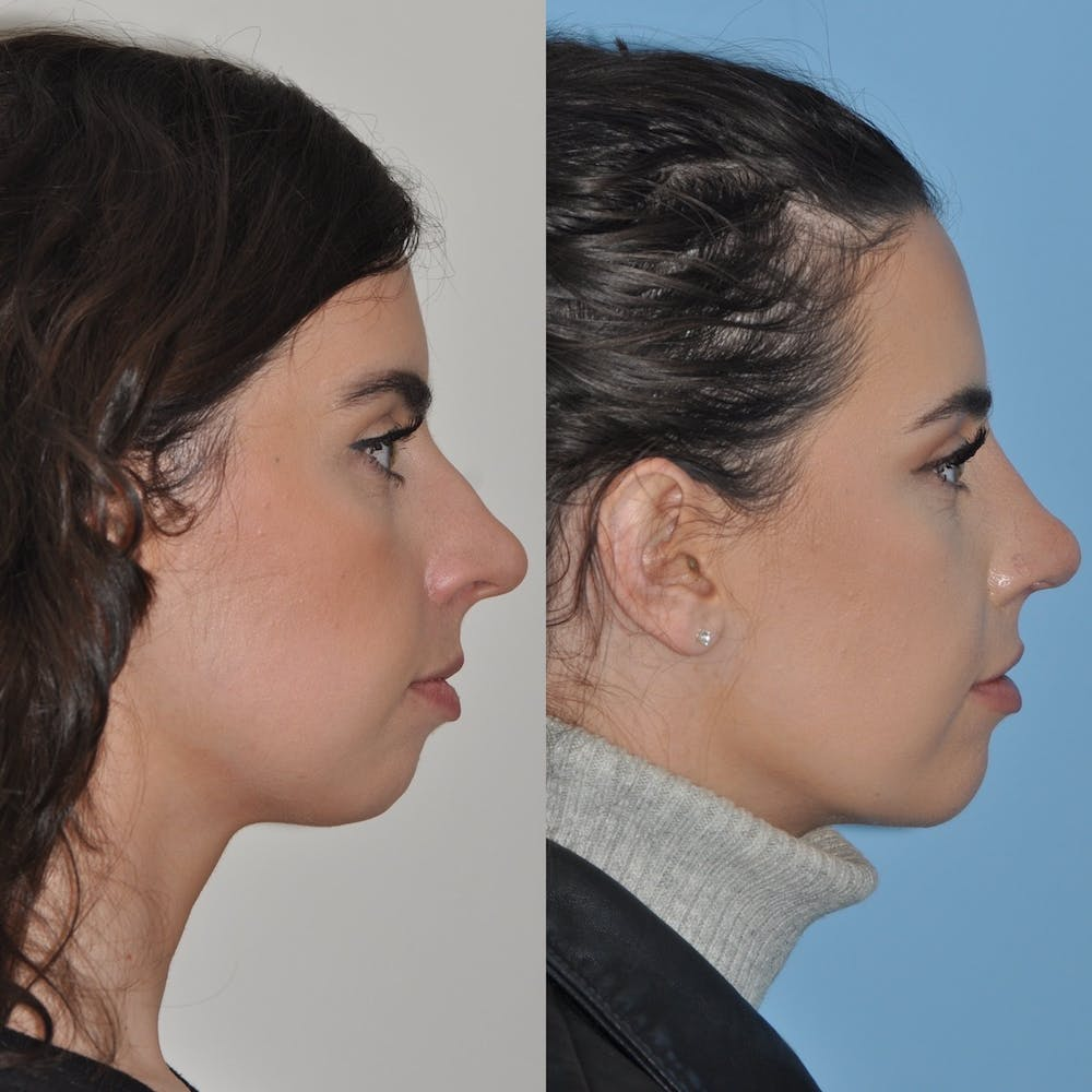 Chin Implants Gallery - Patient 31709268 - Image 2