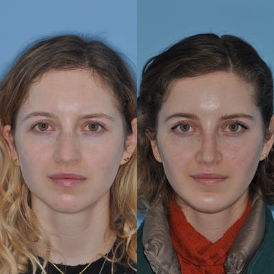 Chin Implants Gallery - Patient 31709269 - Image 2
