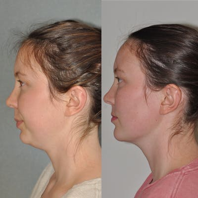 Chin Implants Gallery - Patient 31709271 - Image 1