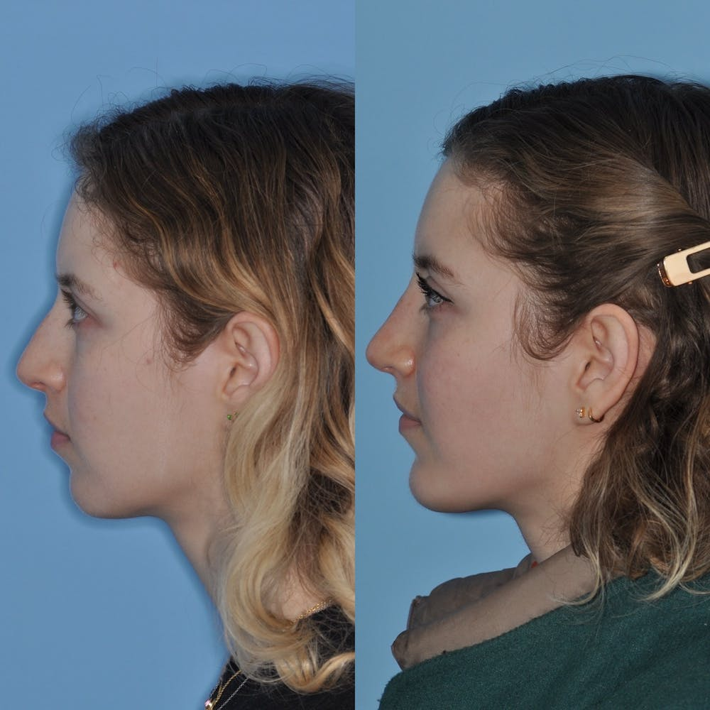 Chin Implants Gallery - Patient 31709269 - Image 3