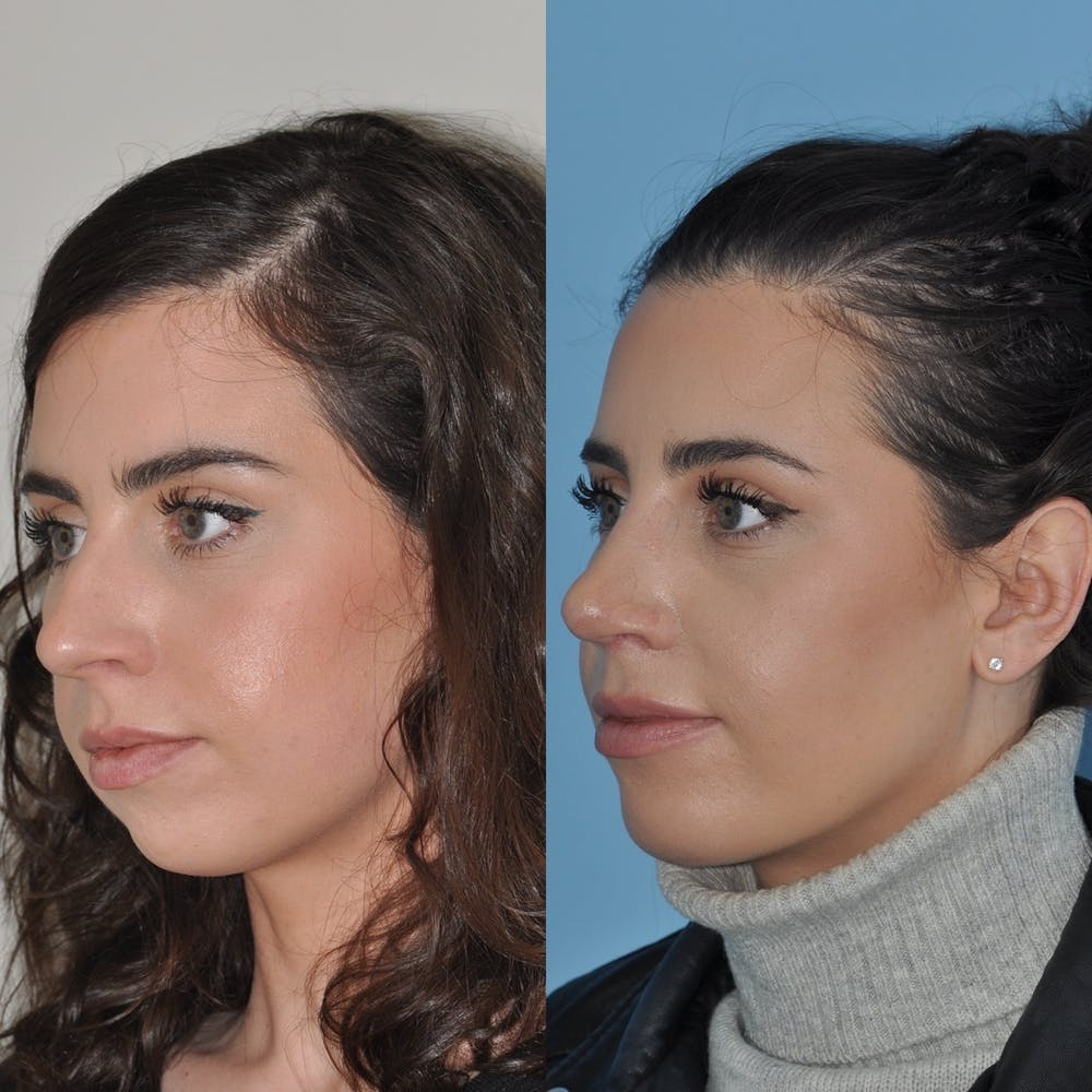 Chin Implants Gallery - Patient 31709268 - Image 4