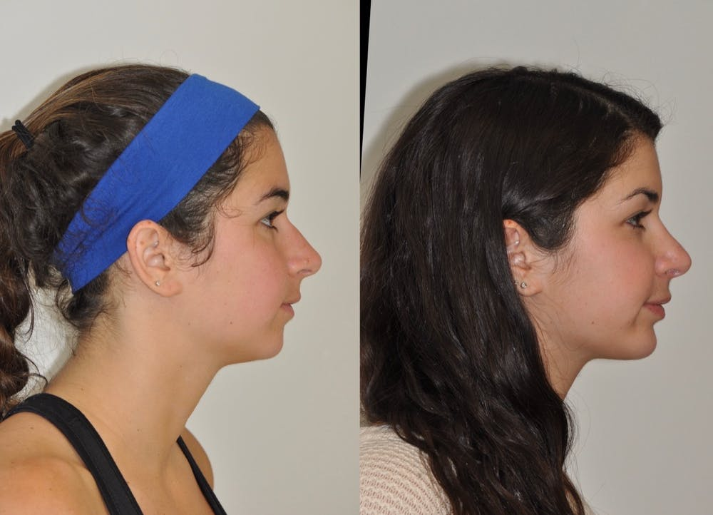 Chin Implants Gallery - Patient 31709270 - Image 2